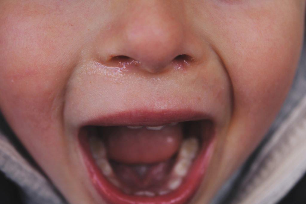 花粉症になると口呼吸になりがちなのも感染しやすい原因